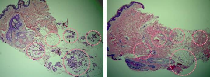 ミラドライ施術前のXXXで撮影した汗腺の様子