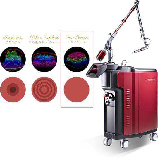 当院で使用する医療用レーザー機器「TRY-BEAM(トライビーム)」の機器