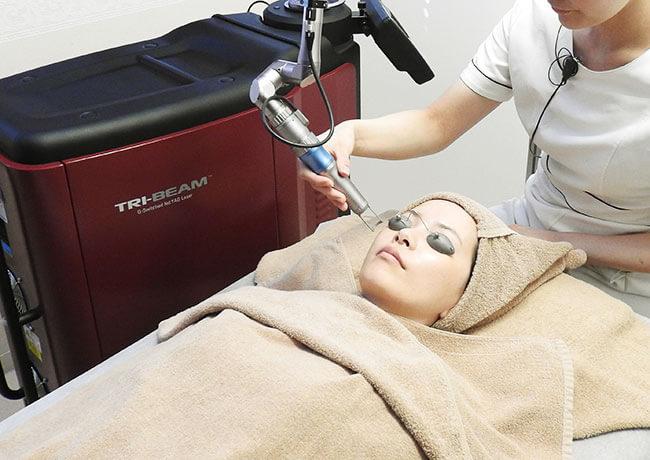 当院で使用する医療用レーザー機器「TRY-BEAM(トライビーム)」でシミ」・くすみ治療をしている様子
