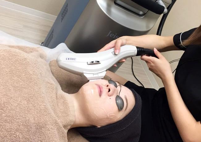 たろうメディカルクリニックで使用する光治療機器「Cellec(セレック)」を使用しシミ・くすみ治療を行っている様子