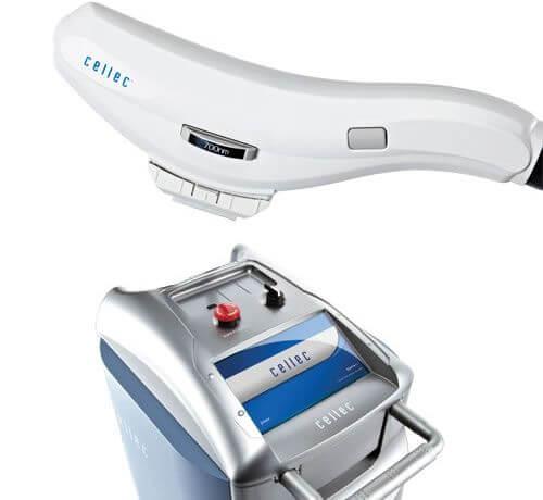 たろうメディカルクリニックで使用する光治療機器「Cellec(セレック)」
