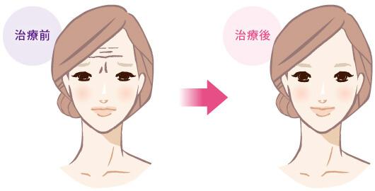 眉間・額の表情シワの治療前と治療後のイラスト